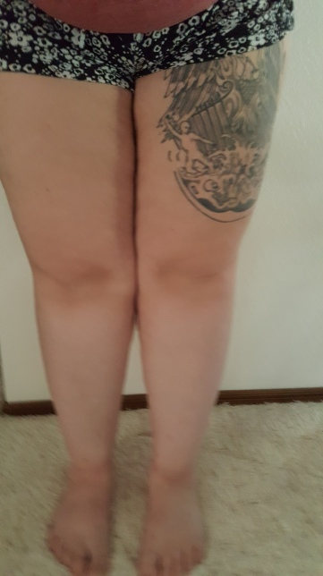 My Legs Full 7-8-17